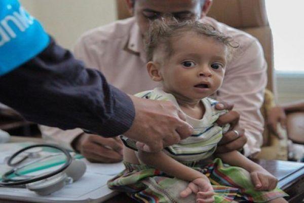 التحالف السعودي يمنع وصول المساعدات للمدنيين في اليمن