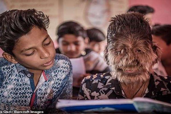 """بالصور.. ما قصة """"الطفل الذئب"""" في الهند؟"""