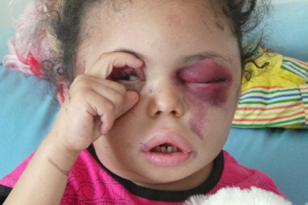 أطفال اليمن يكتبون بدمائهم نهاية آل سعود - ليلى عماشا